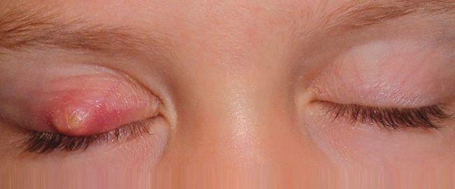 Pengalaman Cara Menghilangkan Ketumbit Di Mata