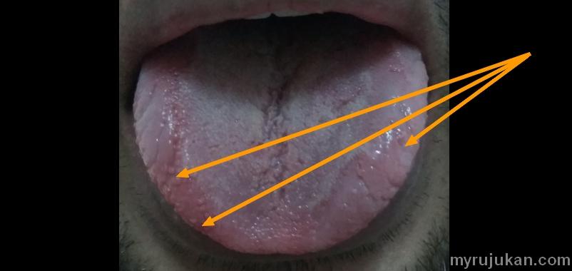 Bintik bintik besar kesan dari jangkitan ulser lidah