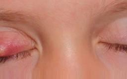 cara menghilangkan ketumbit mata