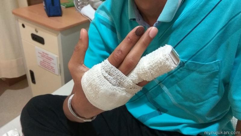 Patah jari akibat dari kemalangan motosikal dengan kereta