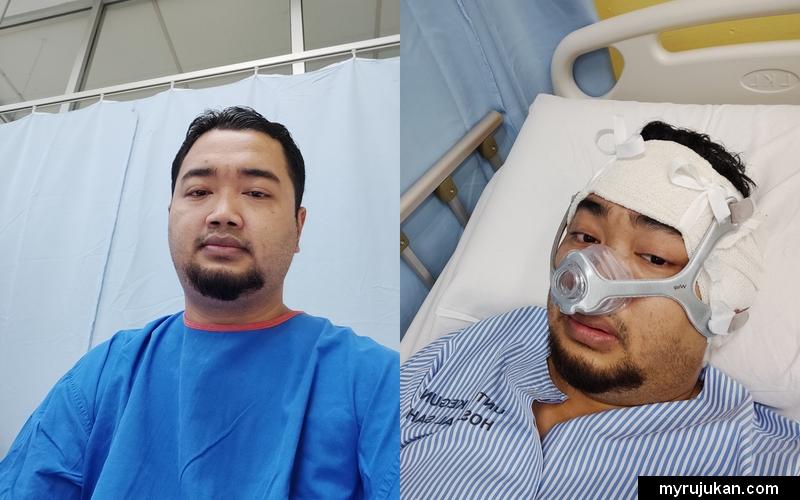 Sebelum dan selepas pembedahan membuang penyakit mastoiditis